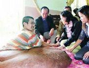 84 kilót nyom a férfi lábában a tumor - durva fotóval
