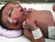 Két arcú kisfiú született - durva fotóval