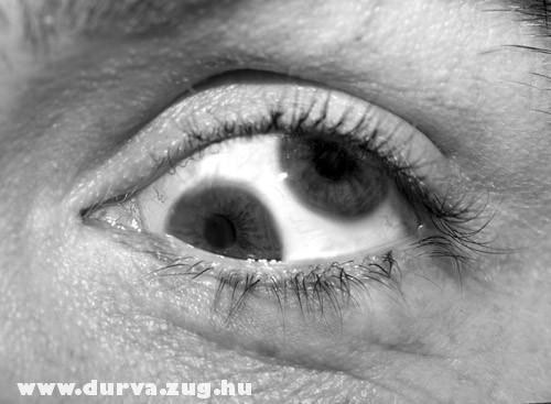 Dupla szemgolyó