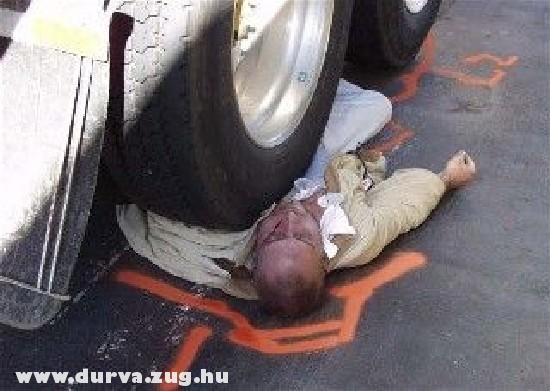 Kamion a mellkasán