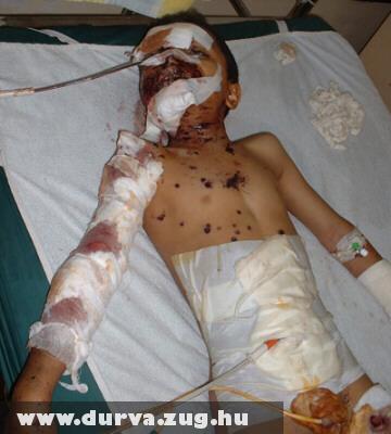 'Szerencsés' gyerek, mert túl élt egy támadást
