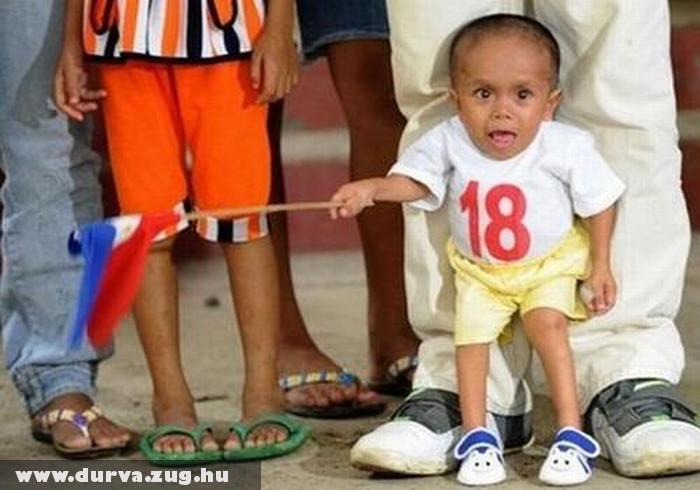 Egy éves korában megállt a növésben