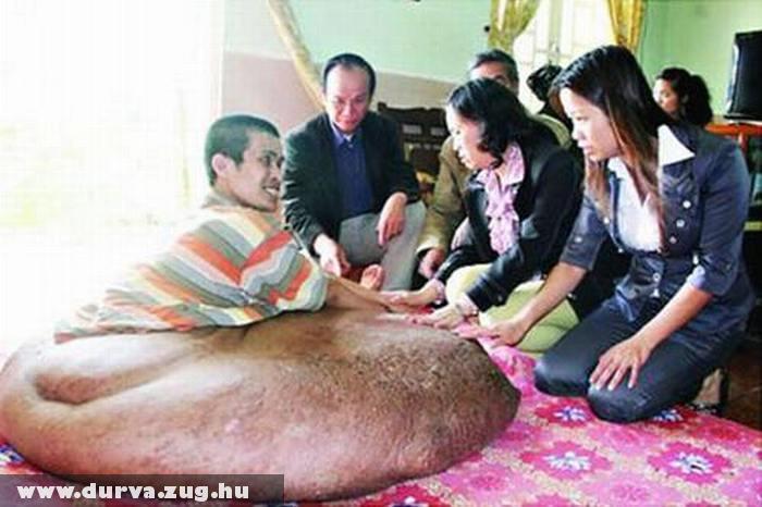 84 kilót nyom a férfi lábában a tumor