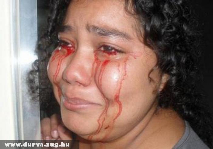 Deborah vért sír - bizarr könnycseppek
