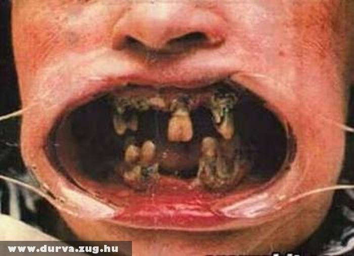 Rohad a fogad?! Fogorvos!