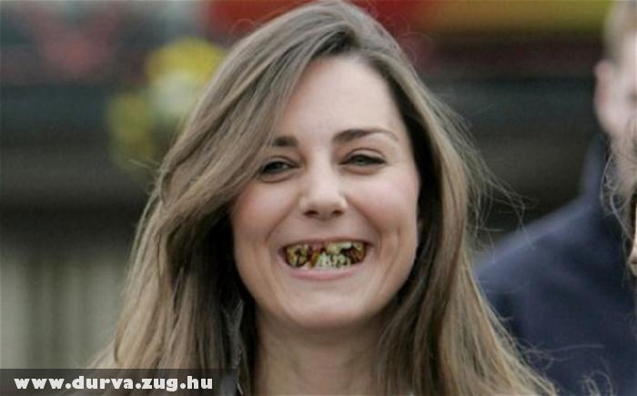 A fogaid romlását elõzd meg!