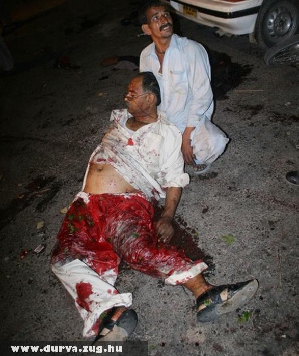 Bomba robbanás után - halálos sérülés