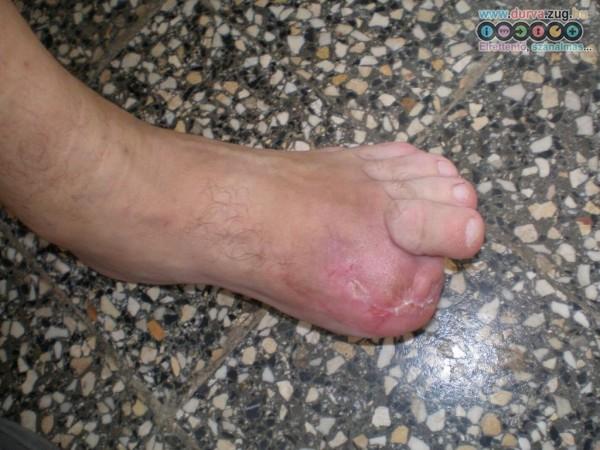 Fűnyíró által csonkolt lábújj