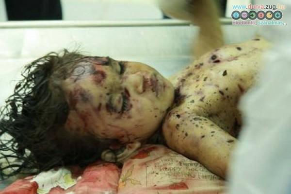 Halálos bombarepeszek ölték meg szegény gyermeket