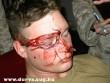 A szemüveg nyomot hagyott - pofon után :D