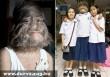 Szõrarcú farkaslány - elfogadják osztálytársai a kislányt